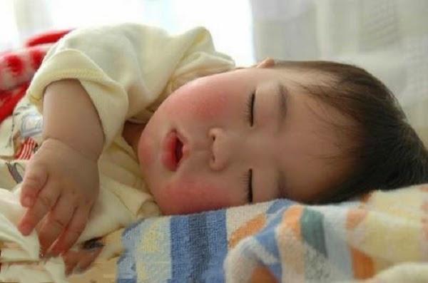 trị da khô ở bé