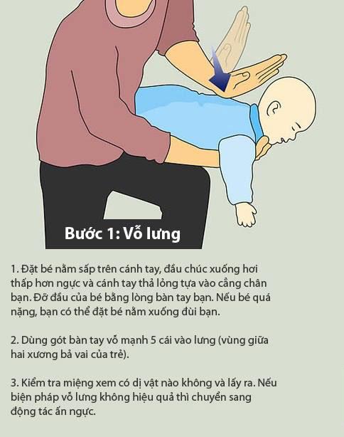 sơ cứu trẻ 1