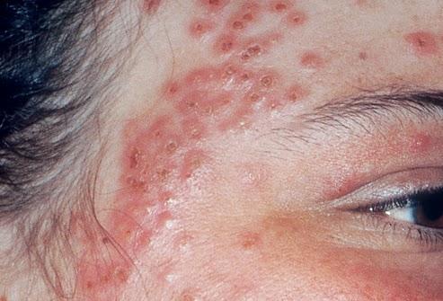 Cách điều trị bệnh eczema hiệu quả