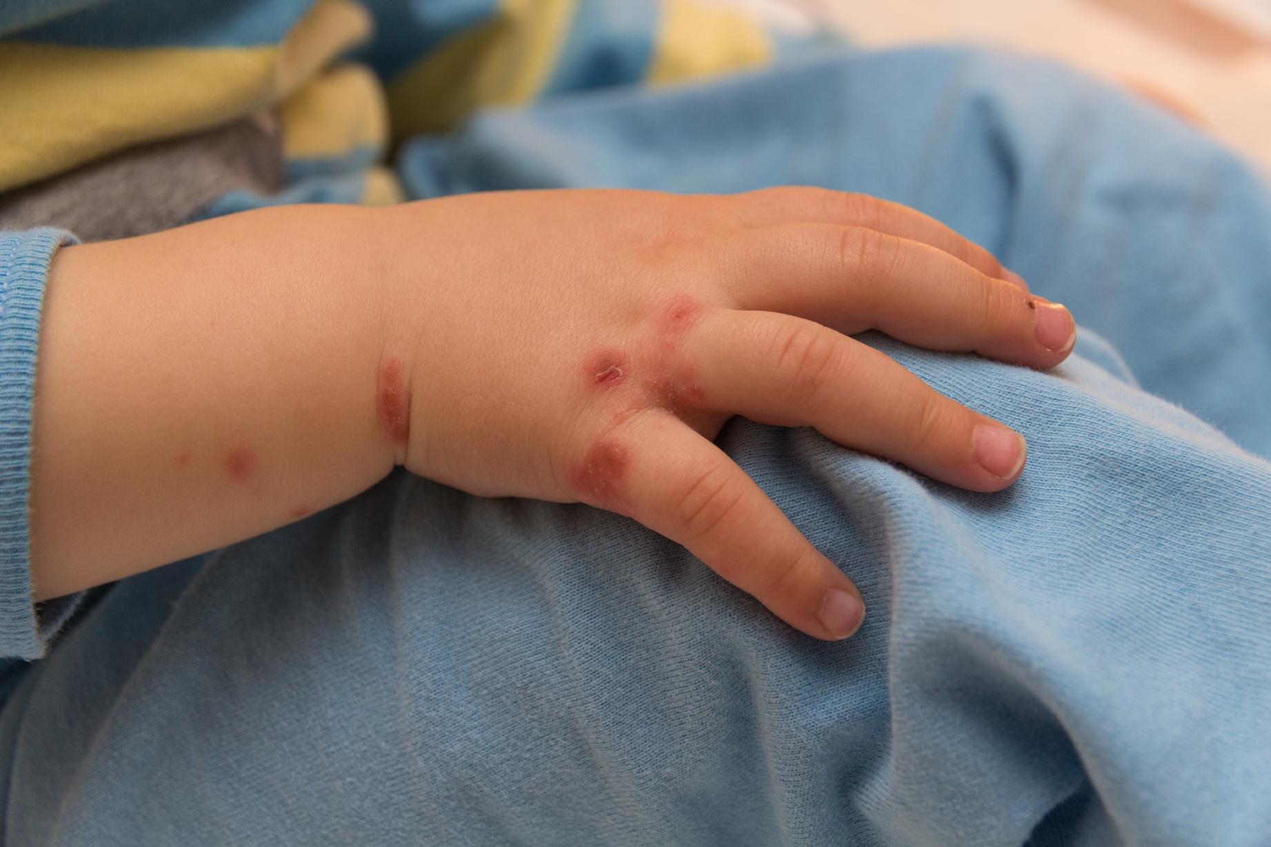 Nguyên nhân dẫn đến trẻ bị viêm da cơ địa