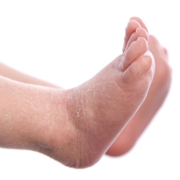 bé bị khô da ở chân