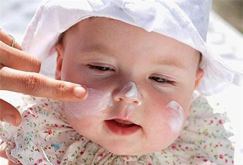 thoa kem là cách chữa cho bé sơ bị khô da