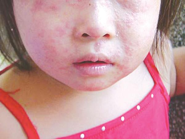 viêm da cơ địa ở trẻ em