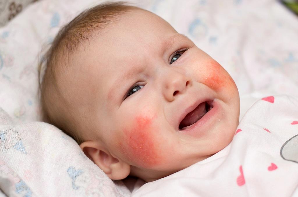 da trẻ sơ sinh bị khô