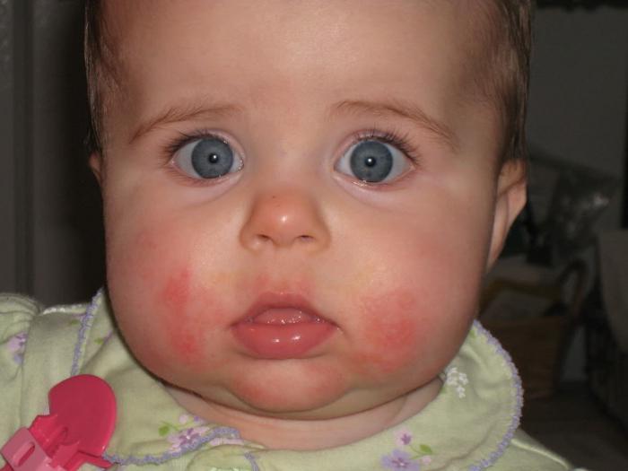 trẻ sơ sinh bị nổi mẩn đỏ