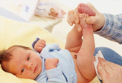 Mẹ cần thay tã thường xuyên để tránh trẻ bị hăm