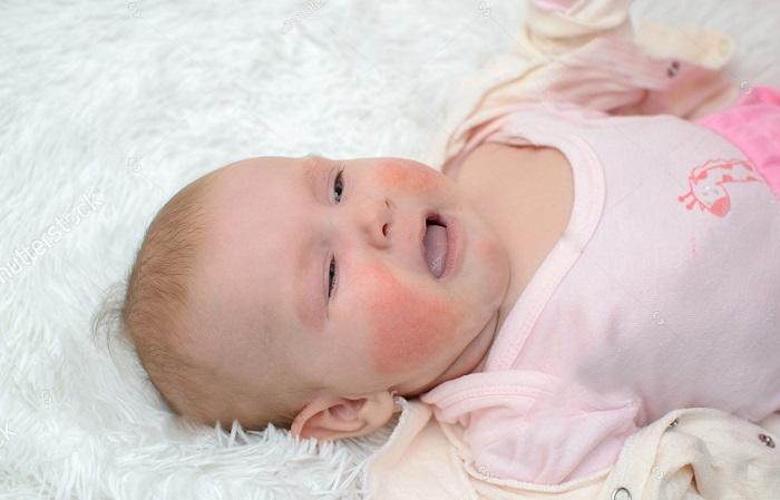 viêm da cơ địa ở trẻ sơ sinh