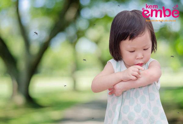 Đặc điểm cơ thể khiến trẻ bị muỗi đốt