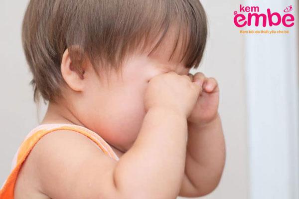 Hậu quả tiêu cực khi bé bị muỗi đốt sưng mắt