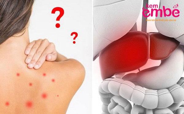 Trẻ bị mẩn đỏ trên da do bệnh gan
