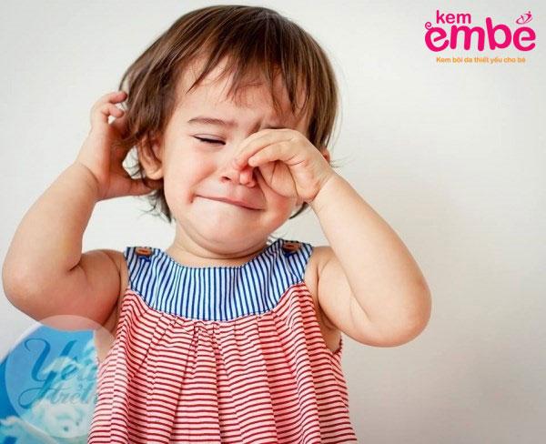 Triệu chứng khi bé bị muỗi đốt sưng mắt