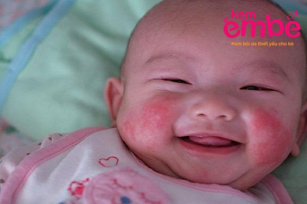 Giai đoạn đầu của bệnh chàm sữa