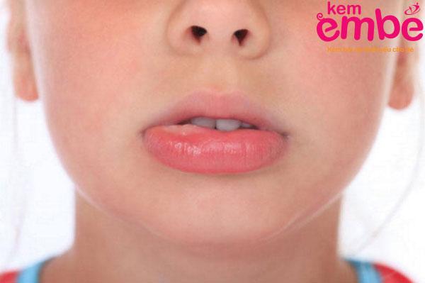 Côn trùng cắn sưng môi và cách xử lý