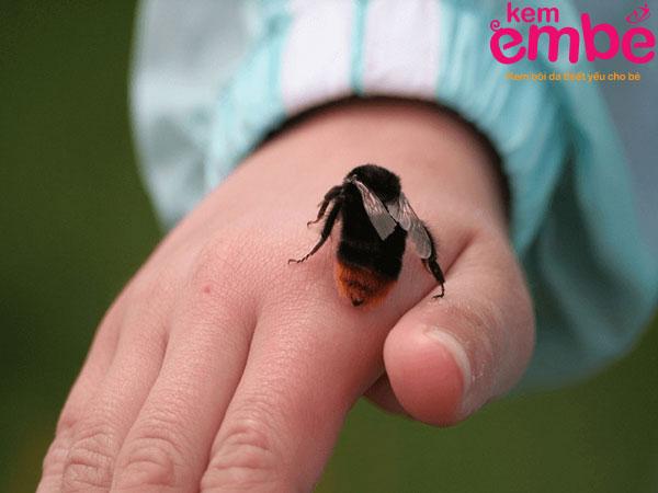 Ong gây ra vết đốt sưng to và đau nhức