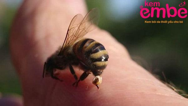 Loại bỏ vết côn trùng cắn