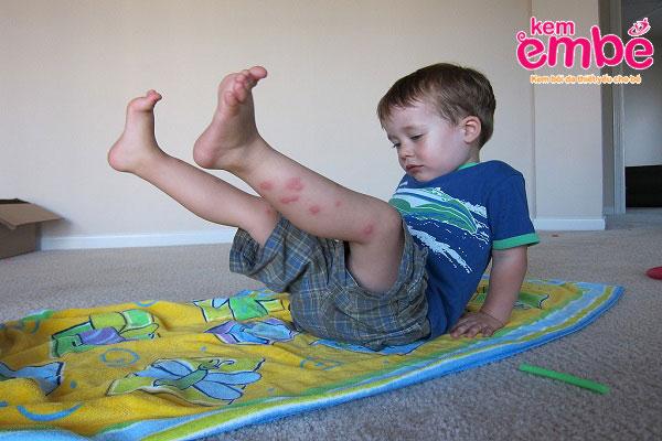 Muỗi đốt nổi mụn nước khiến bé khó chịu