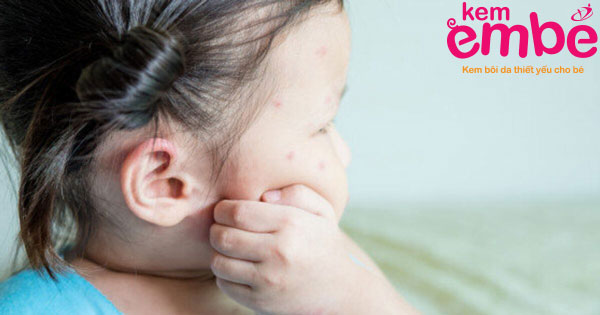 Nguyên nhân trẻ bị côn trùng cắn sưng và ngứa