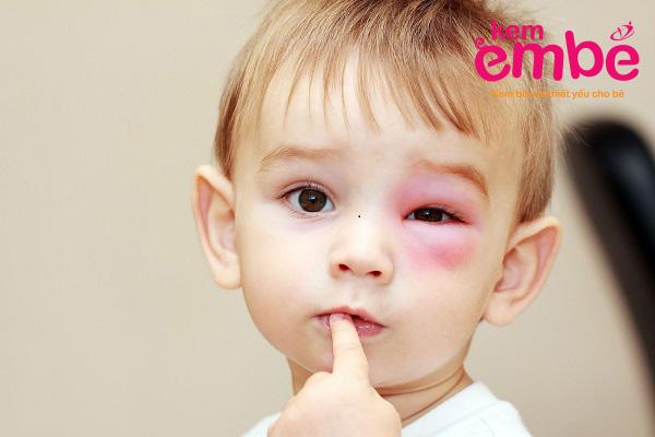 Trẻ bị côn trùng cắn sưng mắt