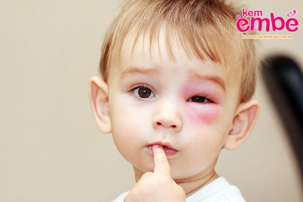 Một số loại côn trùng khi chích vào mắt gây phù nề