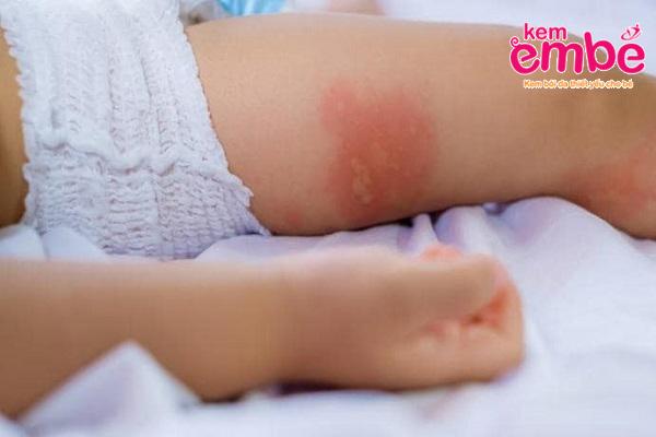 Vùng da bé khi bị muỗi cắn sưng tấy