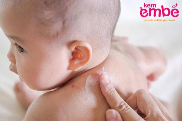 Bôi hồ nước giúp trị chàm sữa cho bé