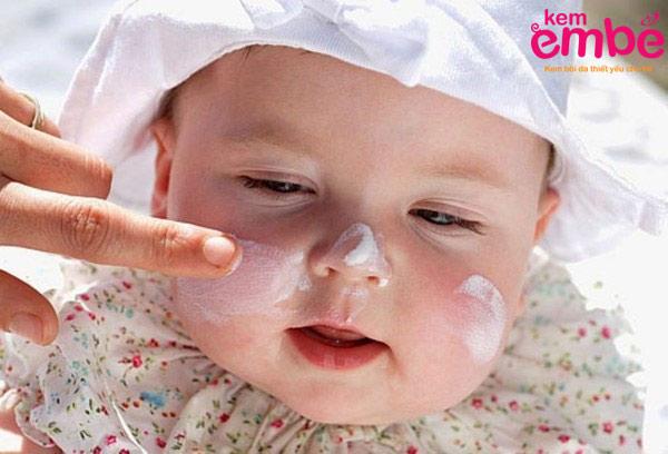 Kem bôi trị chàm cho trẻ