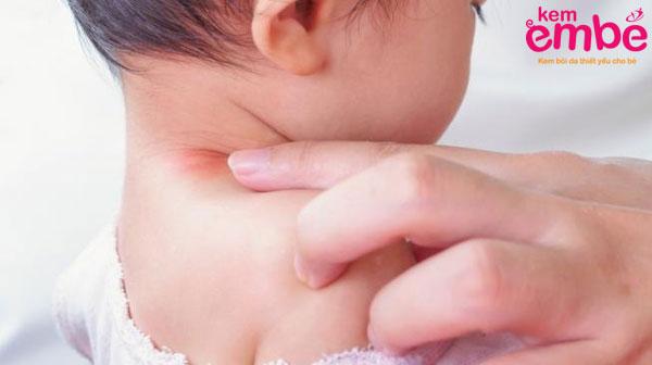 Dưỡng ẩm cho trẻ bị viêm da dị ứng
