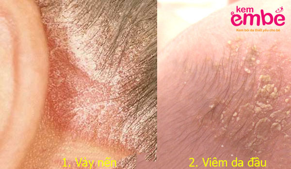 Chuẩn đoán phân biệt viêm da đầu và vảy nến