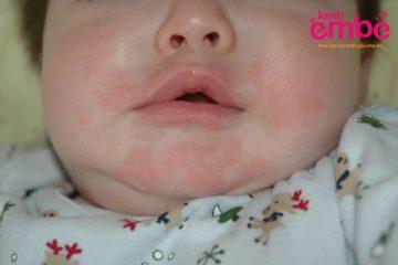 Viêm da dị ứng ở trẻ sơ sinh