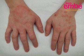 Các loại viêm da ở trẻ em - Viêm da cơ địa ở tay trẻ