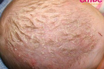 Viêm da đầu ở trẻ sơ sinh