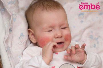 Viêm da ở trẻ sơ sinh bao lâu thì khỏi