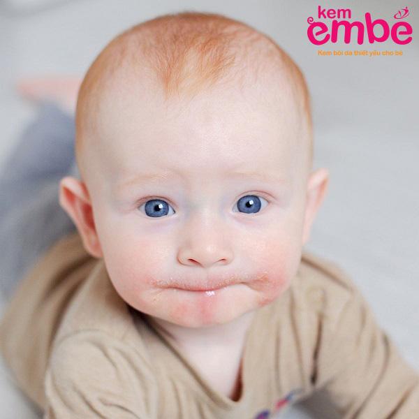 Trẻ bị viêm da tiếp xúc quanh miệng