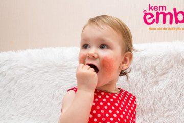 vảy khô lại ở má trẻ em sau khi điều trị