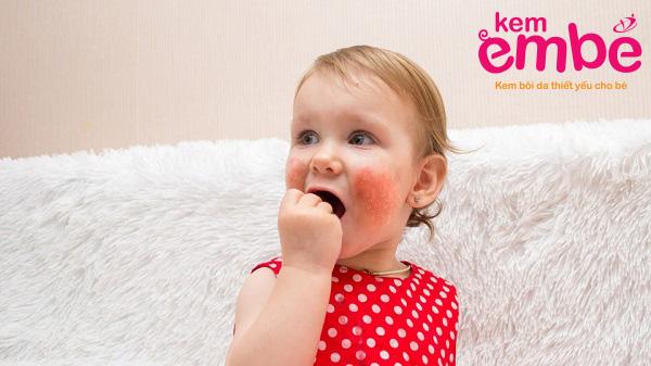 viêm da dầu ở trẻ 3 tuổi