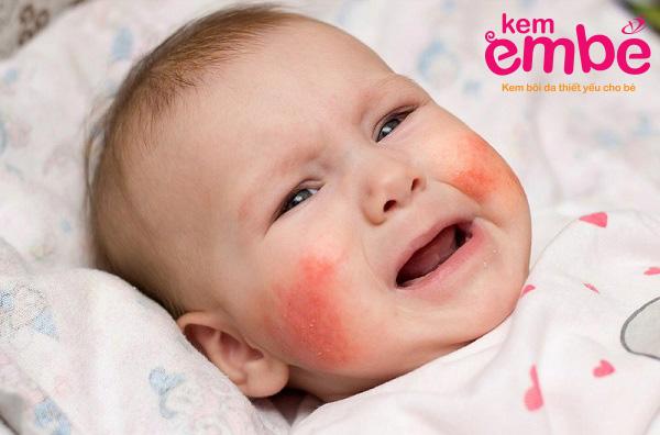 Hình ảnh viêm da tiếp xúc ở trẻ sơ sinh