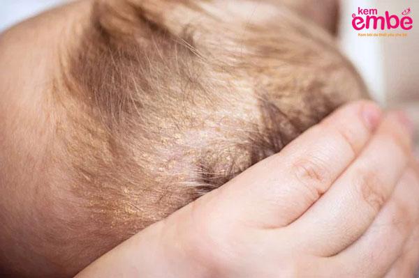 Bệnh viêm da dầu ở trẻ sơ sinh