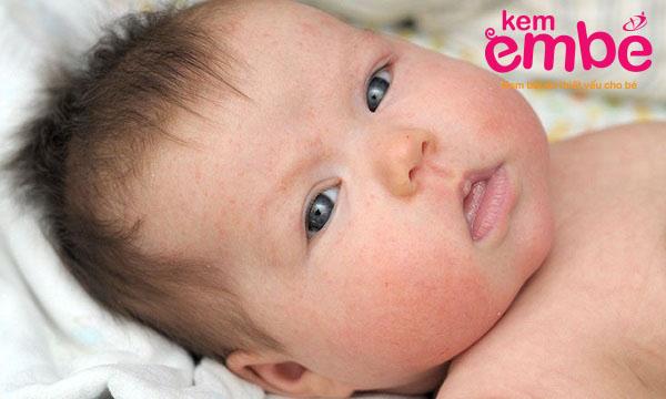 chàm sữa có để lại sẹo nếu bé bị bệnh nặng