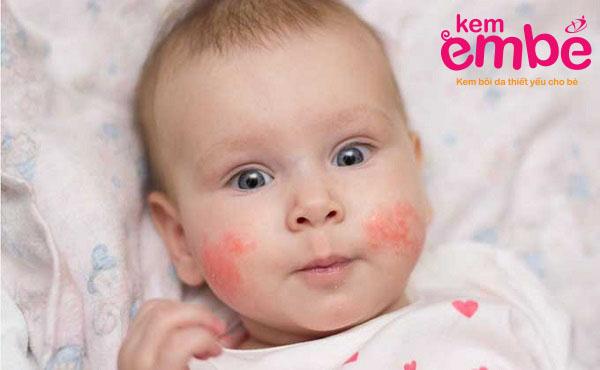 da bé bị tẩy đỏ do chàm sữa ở mặt